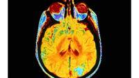Catat, Ini Komplikasi Kanker Otak yang Perlu Diwaspadai