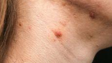 Penyebab Jerawat di Leher yang Bisa Ganggu Penampilan