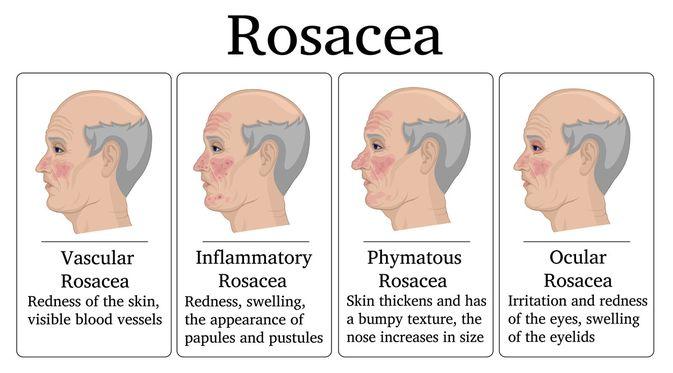 Pengertia Rosacea