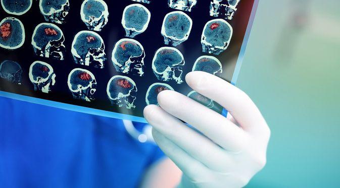 Kanker Otak - KlikDokter.com (sfam_photo/Shutterstock)