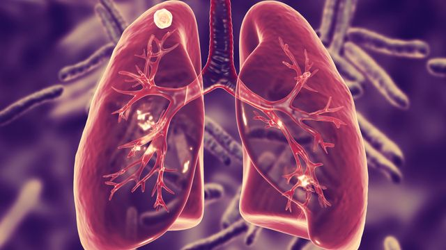 Penyakit-Penyakit yang Ditularkan Melalui Batuk dan Bersin