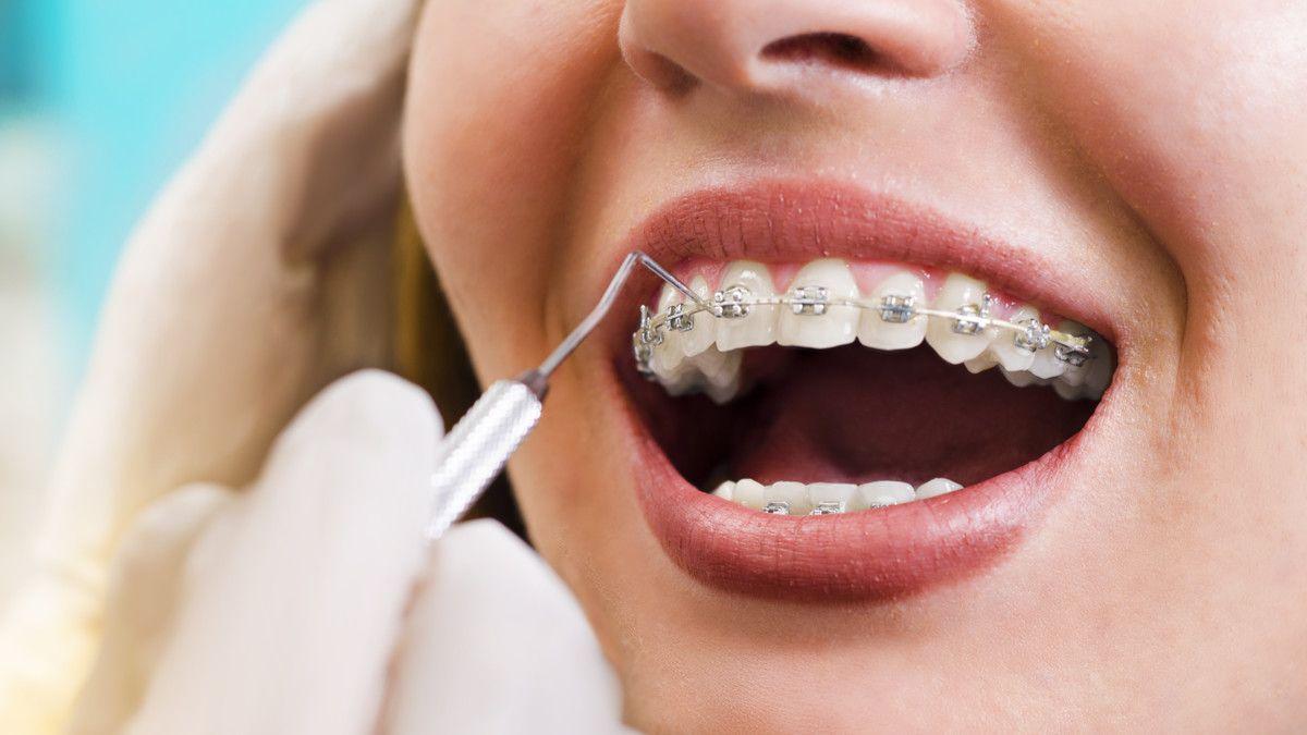36+ Penyebab gigi tidak rata trends