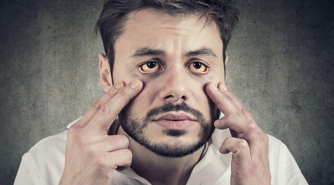 Penyakit Anemia Hemolitik (Pathdoc/Shutterstock)