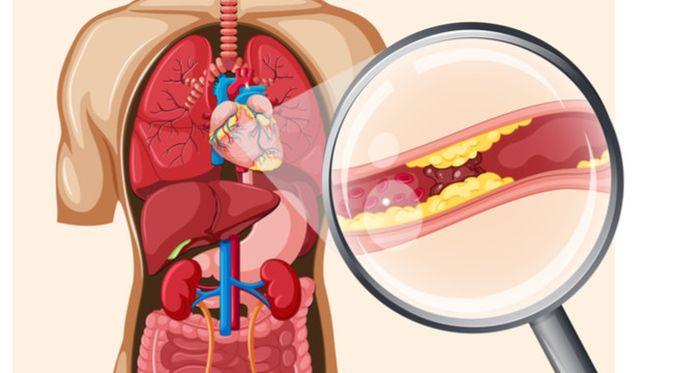 Penyakit Arteriosklerosis (GraphicsRF/Shutterstock)