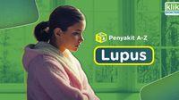 Penyakit Lupus, Penyakit Seribu Wajah