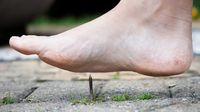 Cara Mencegah Tetanus Akibat Menginjak Paku Berkarat (Talita Nicolielo/Shutterstock)