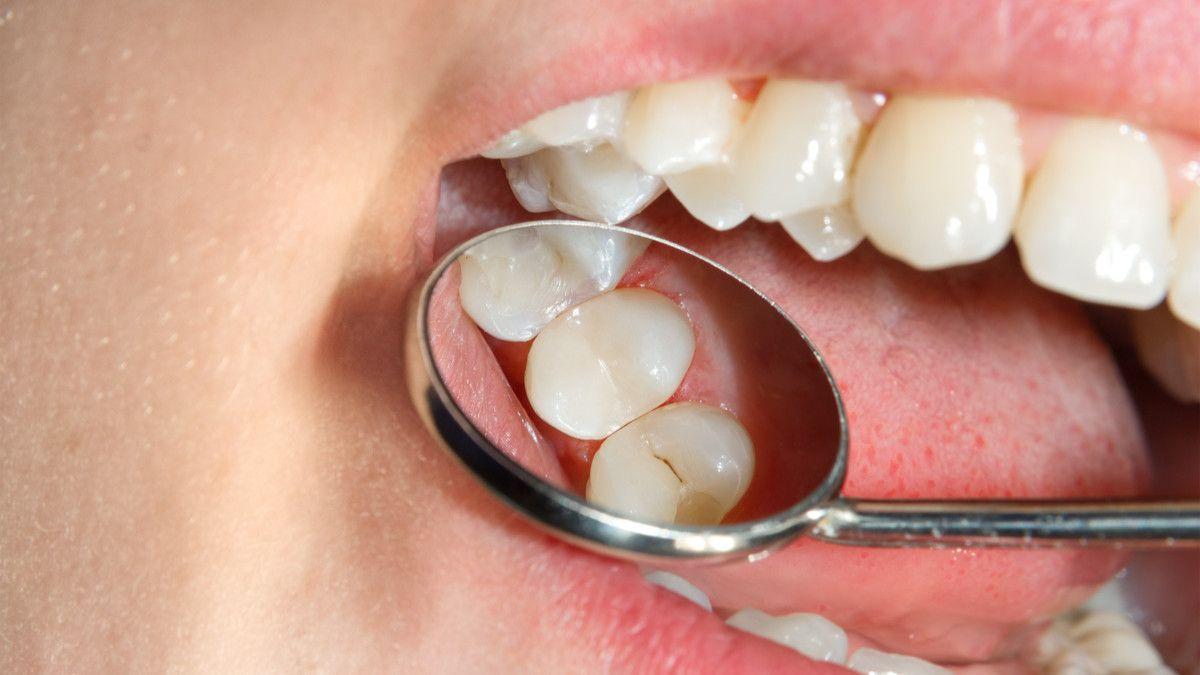 Gigi Berlubang atau Karies Gigi, Lebih Berbahaya Mana?