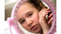 Acne Shaming dan Dampaknya pada Kesehatan Mental
