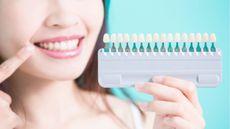 Memutihkan Gigi dengan Bleaching atau Veneer, Mana Lebih Baik?