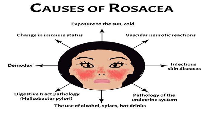 Penyebab rosacea