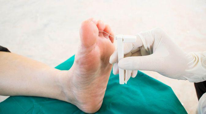 Penyakit Neuropati Diabetik (Memorisz/Shutterstock)