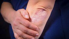 Manfaat Terapi Biologis untuk Penanganan Psoriasis