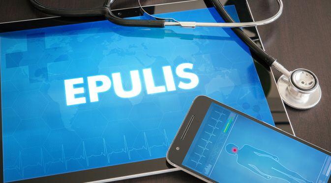 Penyakit Epulis (Ibreakstock/Shutterstock)