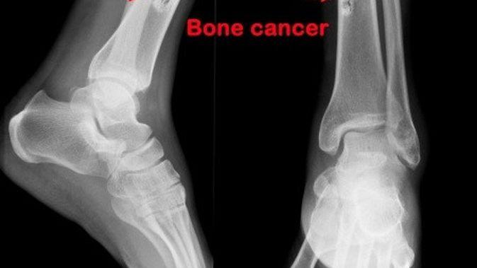 Kanker Tulang - Spesialis Klikdokter.com