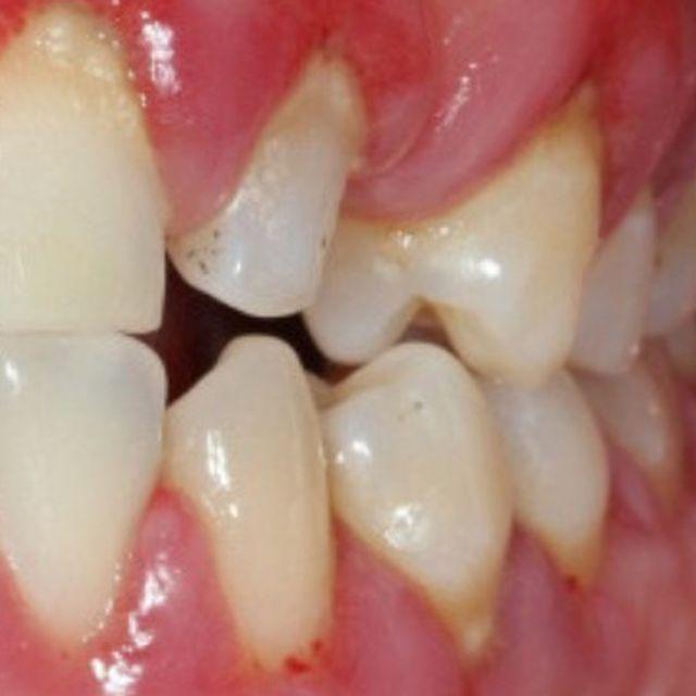 Gusi Bengkak Setelah Tambal Gigi Apa Saja Penyebabnya