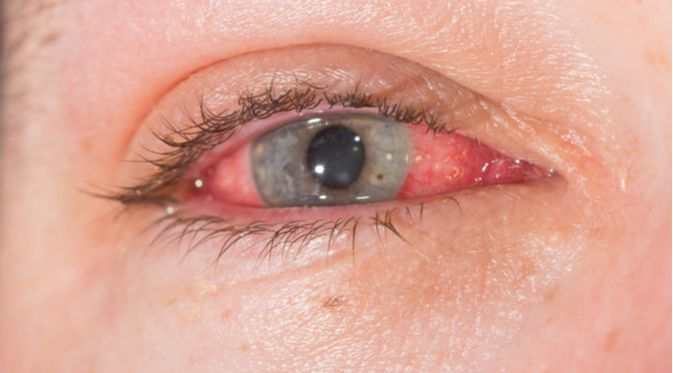 Penyakit Scleritis (ARZTSAMUI/Shutterstock)