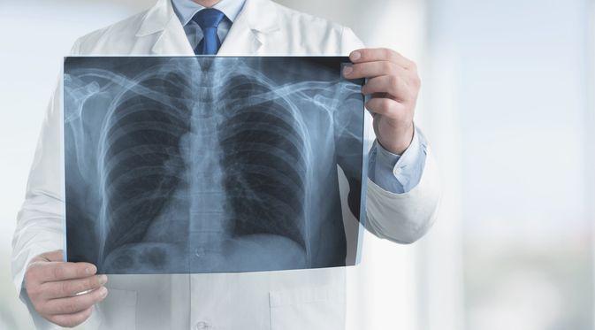 Ilustrasi Diagnosis Bronkitis