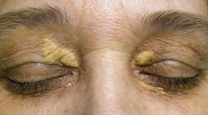 Penyakit Xanthoma (Nau Nau/Shutterstock)