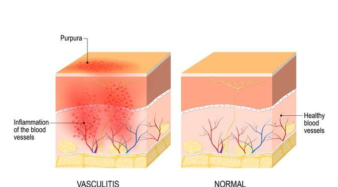 Penyakit Vaskulitis (Designua/Shutterstock)
