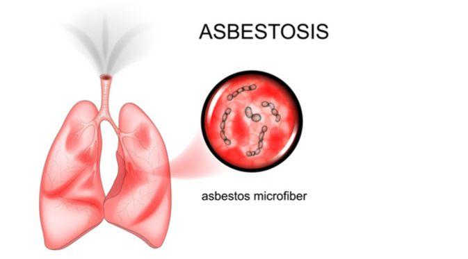 Penyakit Asbestosis (Artemida Psy/Shutterstock)