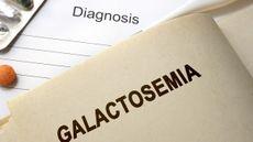 Mengenal Galaktosemia: Penyebab, Gejala dan Pengobatannya (Designer491/Shutterstock)