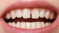 Perlu Tahu, Ini Cara Mengatasi Gigi Bercelah