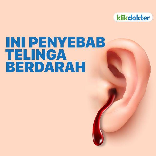 15++ Keluar darah dari telinga ideas
